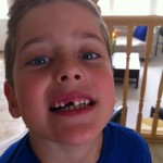 Ethan lost his tooth